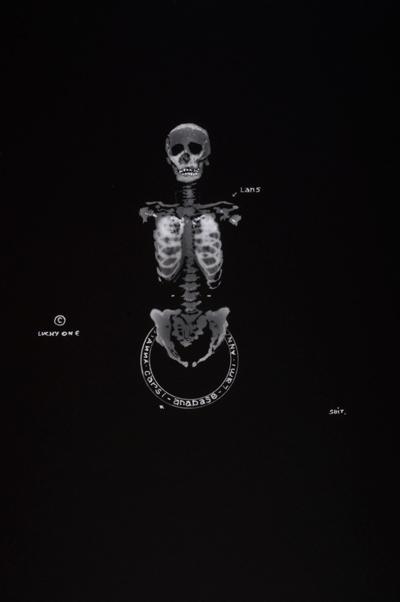 Cérébroscopies