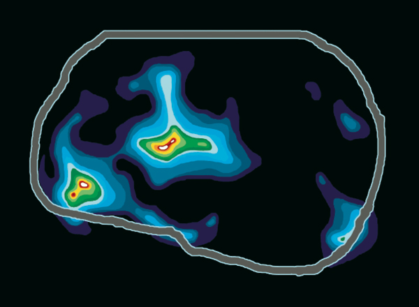 Tomopgraphie d'un cerveau qui ment